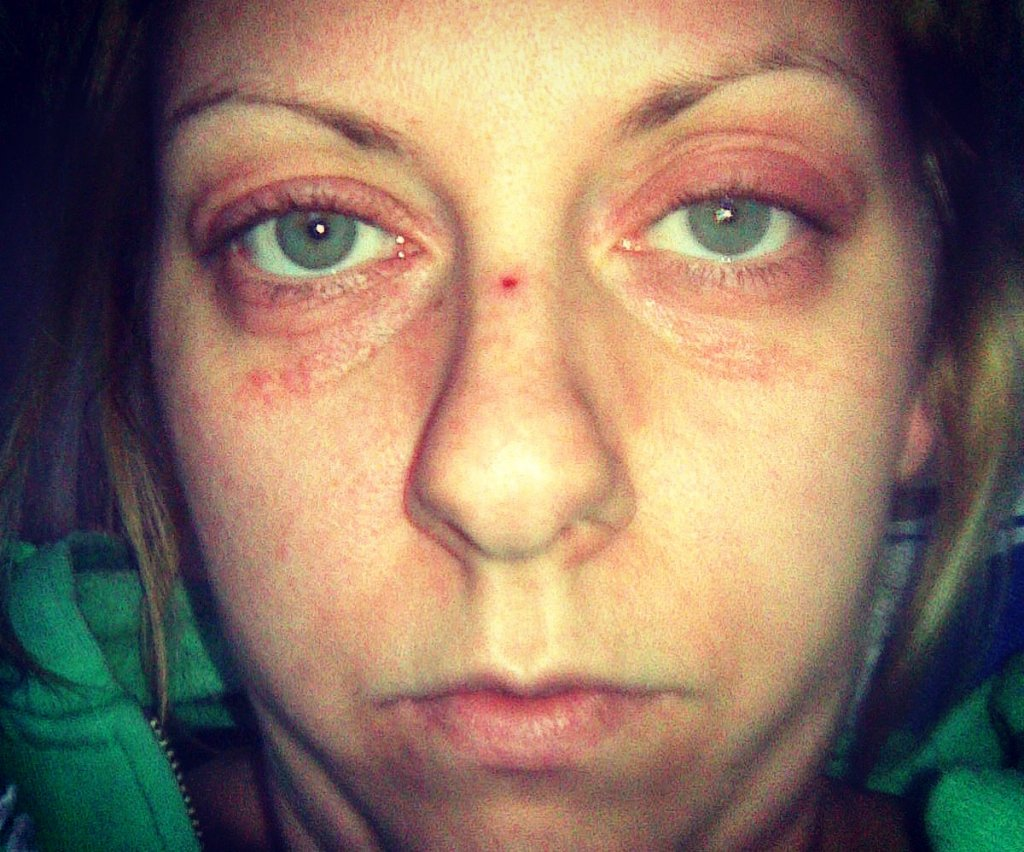 What Is Lupus? - The Hibbs Lupus Trust